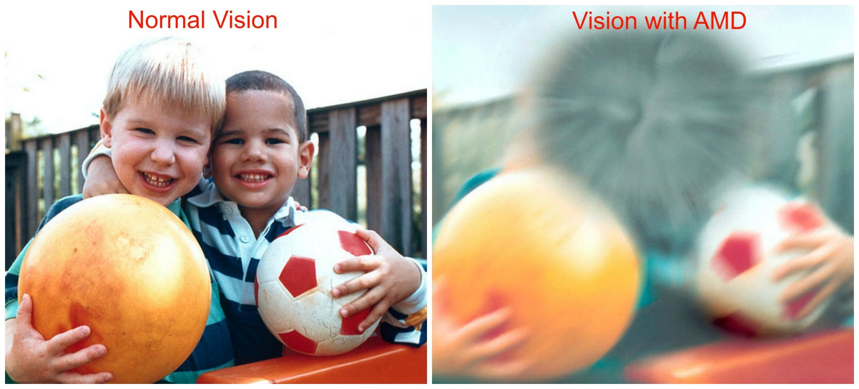 Normal and Age Related Macular Degeneration Vision Google image from http://www.scottsdaleeye.com/wp-content/uploads/2015/03/Macular-Degeneration-Photo.jpg