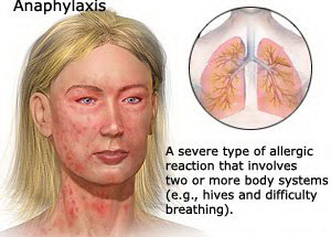 Anaphylaxis Google image from http://foodpoisoningsignsinfo.com/wp-content/uploads/2011/10/Anaphylaxis1.jpg