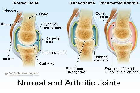 Understanding Arthritis Google image from http://images.medicinenet.com/images/illustrations/arthritic_joints.jpg