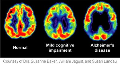 Dementia Google image from http://www.uth.tmc.edu/reynolds/images/GemsDementiaNhosp.png Courtesy of Doctors Suzanne Baker, William Jagust and Susan Landau, University of Texas Health Science in Houston TX - FDG-PET images show reduced glucose metabolism in temporal and parietal regions in Alzheimer's disease and mild cognitive impairment.