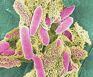 E. coli Google image from http://www.healthline.com/blogs/outdoor_health/uploaded_images/Ecoli%5B1%5D-726771.jpg