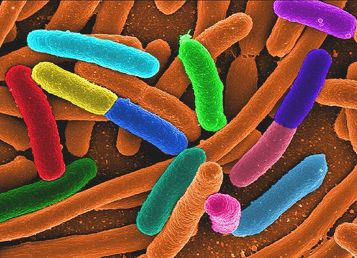 Diverse E. coli Google image from http://zoonotica.files.wordpress.com/2011/06/diverse_e_coli.png