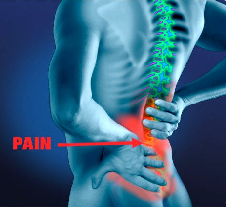 Low Back Pain Google image from http://www.ccarechiro.com/wp-content/uploads/2013/10/763327.jpg