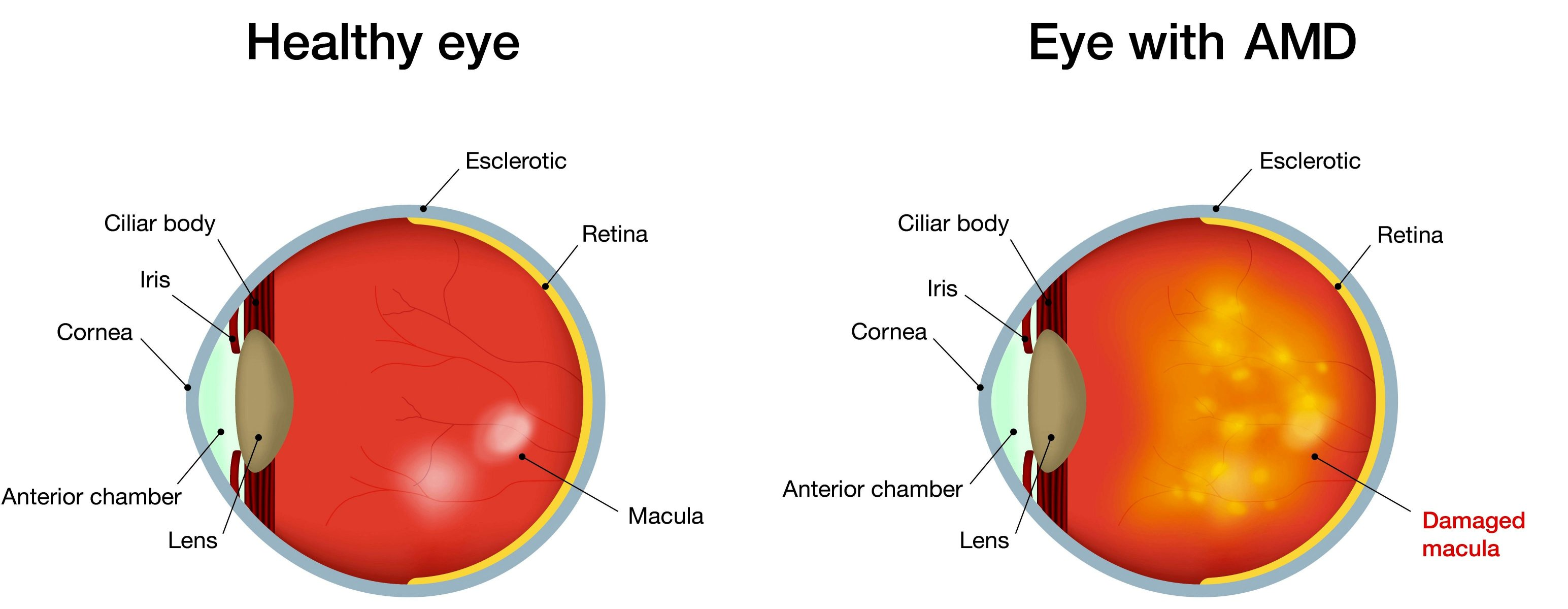Age Related Macular Degeneration Google image from http://www.dignity-eyecare.co.uk/wp-content/uploads/2017/01/mak-degenation-image-tiny.png