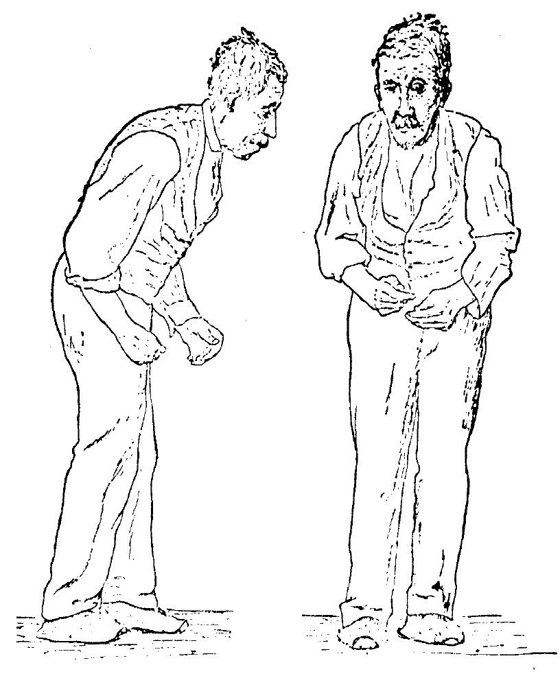 Google image from http://upload.wikimedia.org/wikipedia/commons/d/d7/Sir_William_Richard_Gowers_Parkinson_Disease_sketch_1886.jpg