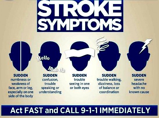 Stroke Symptoms Google image from https://salvagente.co.za/ozone-saunas/stroke-ozone-therapy/